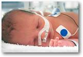 prematuur geboren baby